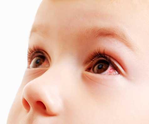 Conjunctivita la bebelusi si copii: ce este si cum o prevenim?