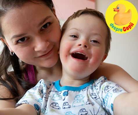 De ce verdictul de Sindrom Down este o condamnare pentru sarcina? - confesiunile dureroase ale unei mamici