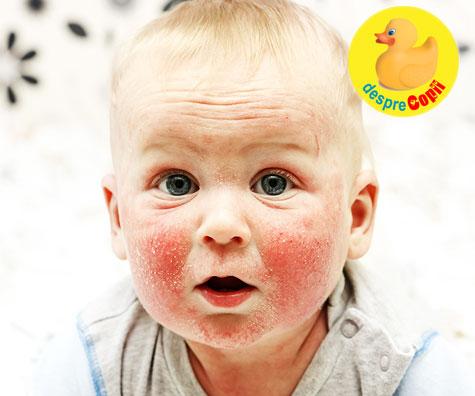 Ce este dermatita atopica si cum tratam aceasta afectiune severa a pielii bebelusului?