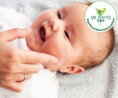 Dermatita atopica la copii - cauze, simptome, evolutie si tratament