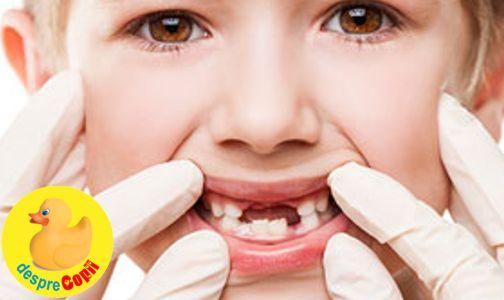 Ce se intampla cand copiii isi pierd prea devreme dintii de lapte?