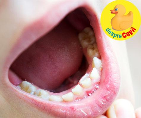 De ce apar dintii permanenti inainte ca dintii de lapte sa cada?