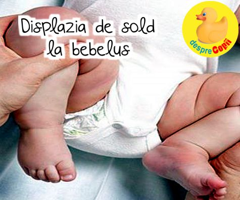 Displazia de sold la bebelus - cauze, diagnostic si tratament.