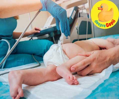Ecografia de sold la nou-nascut poate depista si preveni luxatia congenitala de sold a copilului. Iata de ce e bine sa o faci bebelusului tau.