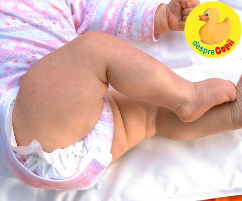 Iritatia produsa de scutece: cum ingrijim bebelusul