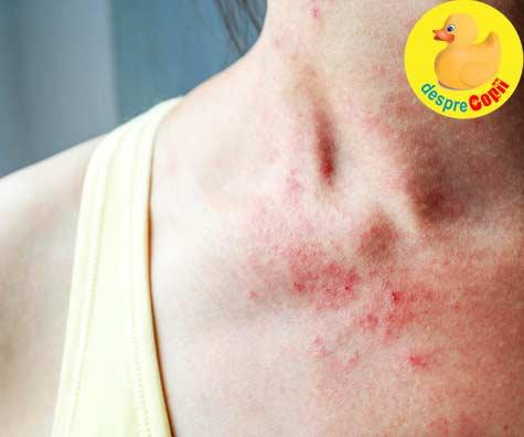 Anumite alimente sunt cauza ascunsa a eczemelor - iata sfatul medicului dermatolog