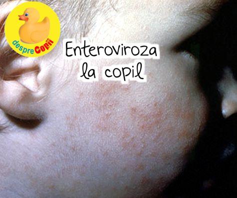 Enteroviroza la copil: tipuri, simptome si cum se trateaza