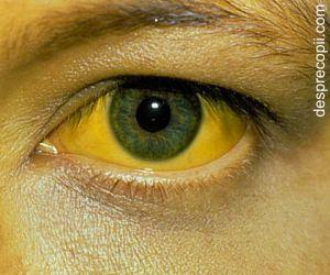 Hepatita A: simptome si ce e facut