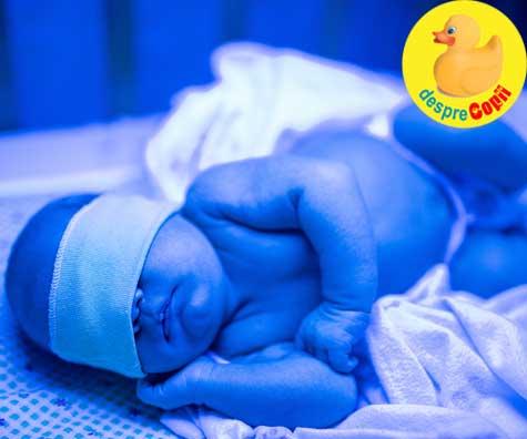 Icterul nou nascutului. Cauze si tipuri si despre mitul icterului de alaptare