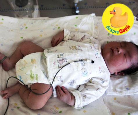 Macrosomia fetala - boala bebelusilor gigantici