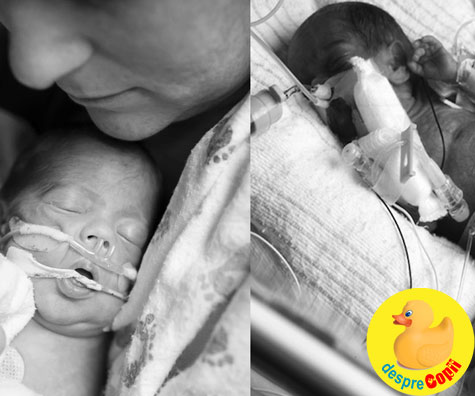 A fi mama unui bebelus prematur inseamna sa ...