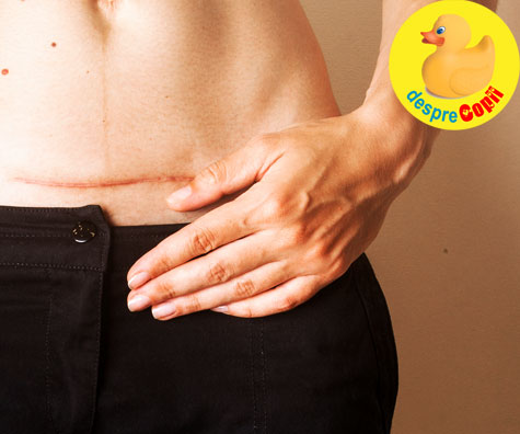 Ce motive medicale recomanda o nastere prin operatie cezariana? Iata raspunsul medicului specialist.