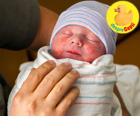 Muscatura de barza la nou bebelusii nascuti si alte semne din nastere