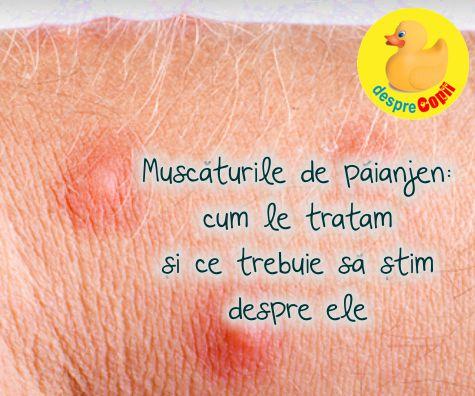 Muscaturile de paianjen - cum le renoastem si ce facem