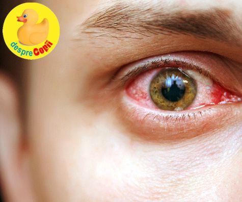 Ce afectiuni indica ochii rosii?