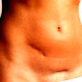 Cate operatii de cezariana poate avea o femeie ?