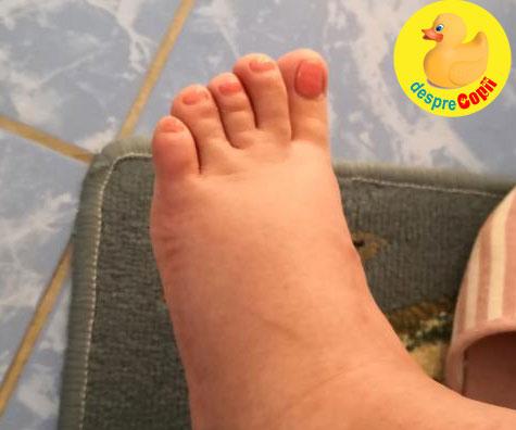 Inflamatia picioarelor in sarcina: iata ce am facut - jurnal de sarcina