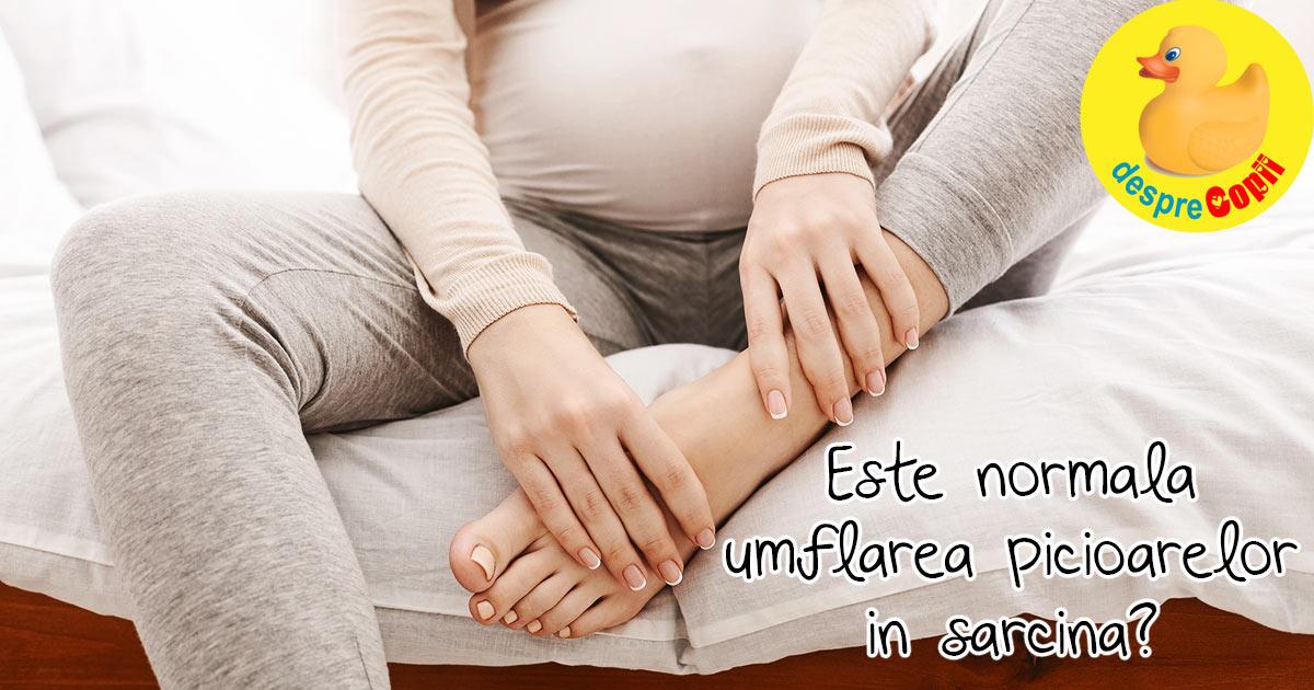 De ce se umfla picioarele in timpul sarcinii?