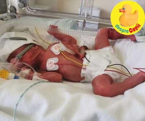 Fetita minune care s-a nascut la 25 de saptamani dupa ce mama nu a recunoscut durerile travaliului - o nastere foarte prematura
