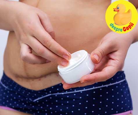 Greselile mamicilor dupa cezariana: nu ofera timp suficient de recuperare corpului