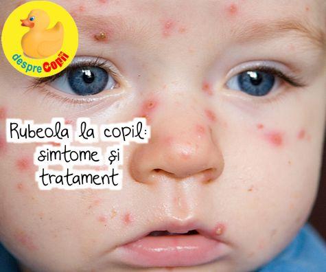 Rubeola la copil: simptome, tratament si prevenire