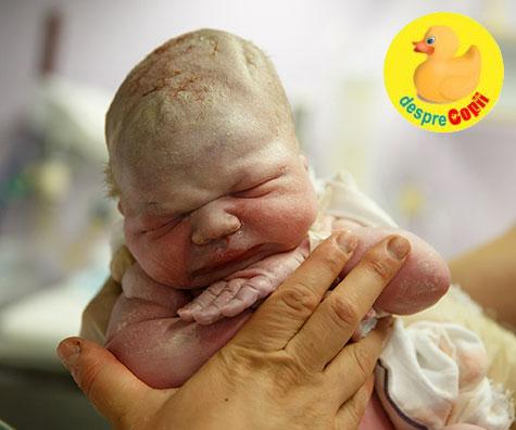 Scorul Apgar al nou-nascutului - cum se calculeaza si ce inseamna