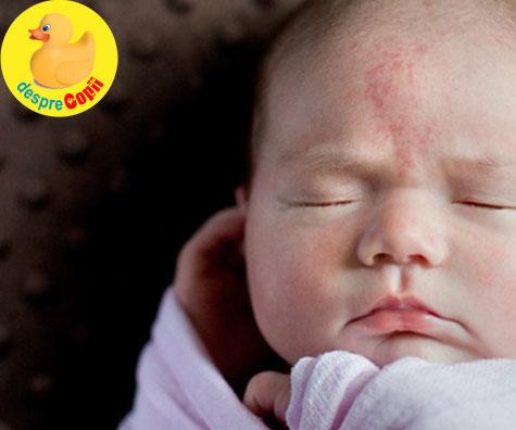 Semnele din nastere ale bebelusilor: de ce apar si cum le recunosti, ghid complet