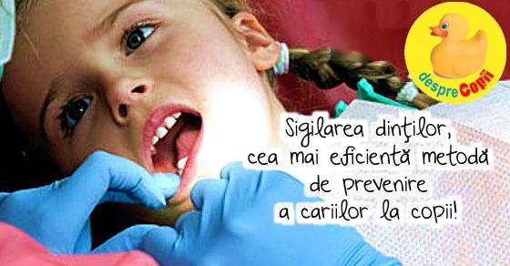 Sigilarea dintilor, cea mai eficienta metoda de prevenire a cariilor la copii!