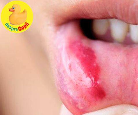 Stomatita la copil: simptome, tratament si atentionari