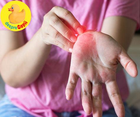 Urticaria - tipuri, cauze si cum se poate manifesta